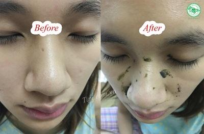 Trước và sau khi dung bột lột mụn 2S matcha